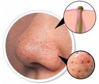 Черные точки на носу: домашние методы лечения и профилактики фото