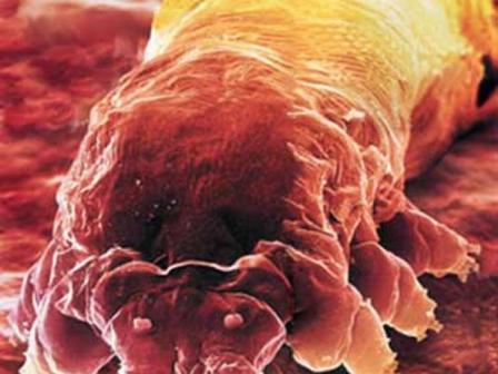 Демодекс живут только на теле человека. Они были открыты в 1841 году учеными, которые изучали прыщи на лице пациентов под микроскопом, когда заметили объекты, похожие не червей с головой и лапками.