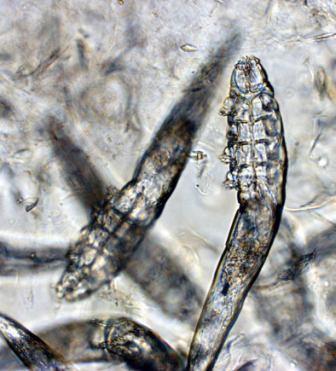 Эти клещи являются нашими самыми распространенными эктопаразитами, то есть они обитают на поверхности нашего тела и встречаются у людей разной этнической принадлежности.