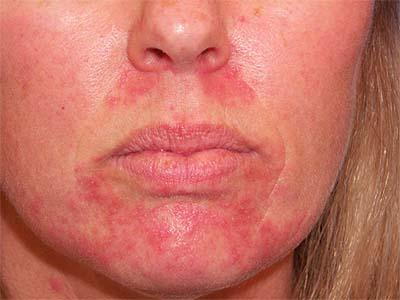 Прыщи вокруг рта - возможно, у вас изменение гормонального фона или дисфункция пищеварения.