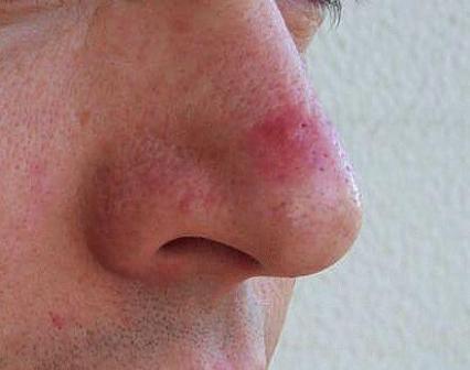 Какие бывают прыщи на носу