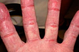 Контактный дерматит: виды, симптомы, медицинские и народные способы лечения фото