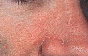 Себорейный дерматит (жирная экзема)  на лице: причины развития, лечение и профилактика фото