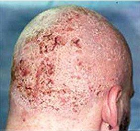 Как бороться с себорейным дерматитом? Лечение медицинскими и народными средствами фото