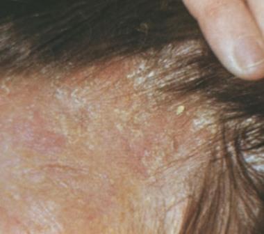 Себорея на голове: признаки, причины, методы избавления фото