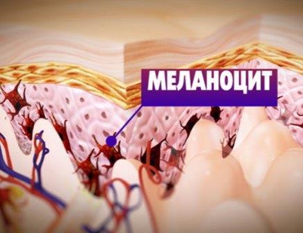 Что делать при меланоме: обнаружение, способы лечения, использование иммунотерапии фото