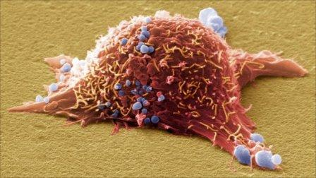 Когда меланома появляется в лимфоузлах – консультация врача обязательна