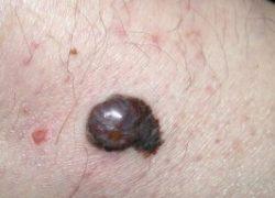 Анализ крови при меланоме: выявление заболевания фото