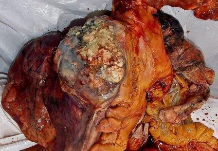 Когда в кровь попадают продукты распада опухоли, развивается раковая интоксикация