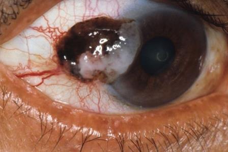 Меланома глаза не менее опасна, чем другие локализации рака