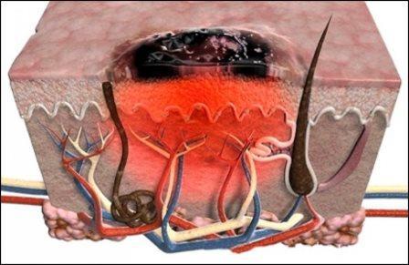 Если количество атипичных клеток станет больше критической – рак неизбежен
