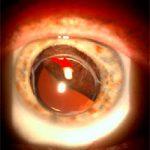 Меланома хориоидеи – самая распространенная онкопатология глаза