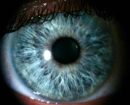 У людей, имеющих светлый цвет глаз, меланома встречается чаще