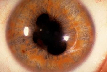 Изменение формы зрачка не редко является симптомом меланомы хориоидеи