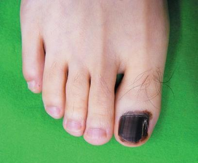 По мере развития злокачественного образования поражается весь ноготь