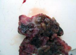 Меланома после удаления: осложнения, лечение, профилактический уход фото
