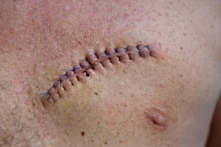 Послеоперационная рана ежедневно обрабатывается, для уменьшения риска возникновения осложнений