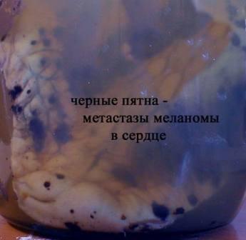 Хирургическое удаление метастазов из жизненно важных органов невозможно
