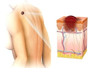 Меланома спины: распространенность, виды, профилактика заболевания фото