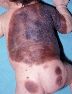 Детский организм еще не сформирован и ему, труднее противостоять опухоли