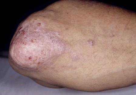 Артропатический тип псориаза – поражается не только кожа, но и суставы