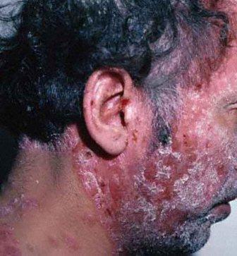 Самолечение псориаза крайне опасно, возможно появление тяжелых осложнений