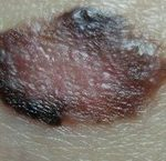 Поверхностно распространяющаяся меланома - форма рака кожи, образованная из меланоцитов