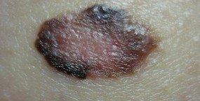 Поверхностная меланома: признаки, причины развития, методы лечения фото