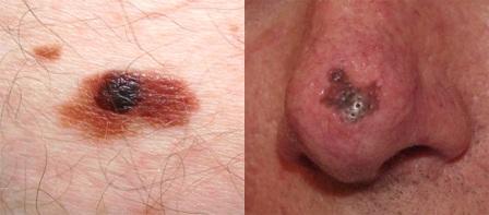 Появление более темных коричневых вкраплений – повод для обращения к дерматологу