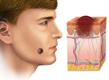 Меланома - очень коварна: даже небольшая опухоль  способна  метастазировать в разные органы