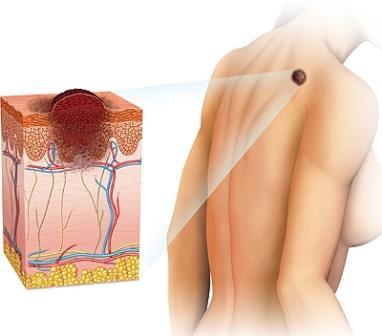 Раковые клетки быстро прирастают вглубь кожных покровов