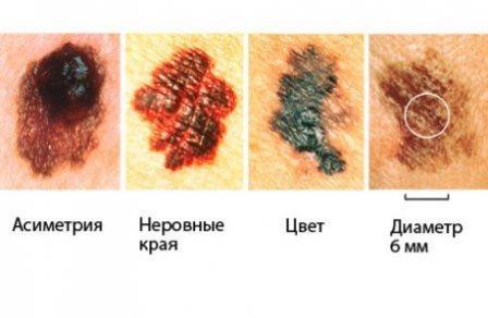 По этим признакам можно заподозрить развитие меланомы