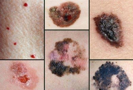 Врачи выделяют несколько форм меланомы в зависимости от ее роста