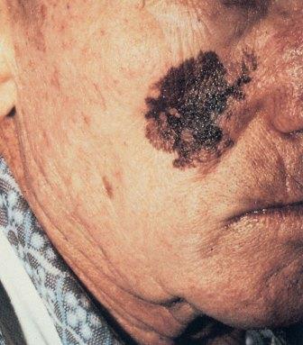 Меланома является самой быстрорастущей опухолью, от первой до четвертой стадии проходит несколько месяцев