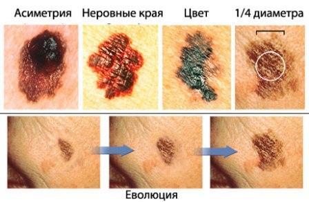 На фото показана четверка основных отличительных  признаков меланомы