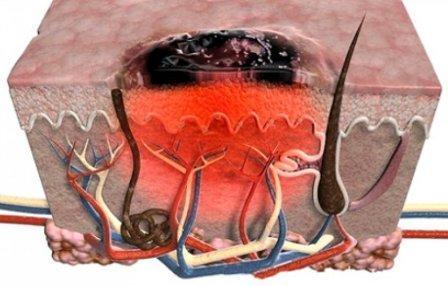 Сначала раковые клетки развиваются в поверхностном слое кожи, но потом прорастают внутрь
