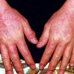 Аллергическая реакция – достаточно частый сбой в работе иммунной системы