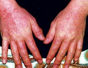 Диагностика и лечение аллергического дерматита фото
