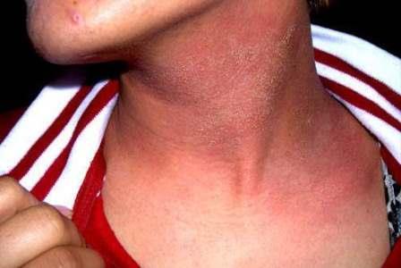 Повышенная чувствительность иммунной системы к некоторым веществам (аллергенам) называется сенсибилизацией