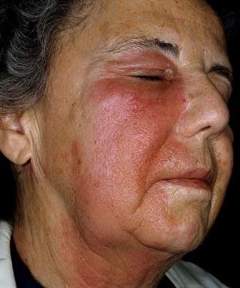 Способствовать развитию аллергического дерматита могут многие факторы