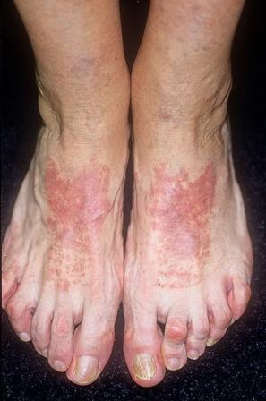 Профилактика аллергии заключается в устранении контактов с аллергеном