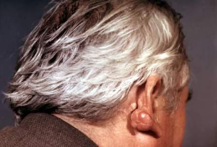 Как правило, дерматофиброме подвержены люди от 30 до 50 лет
