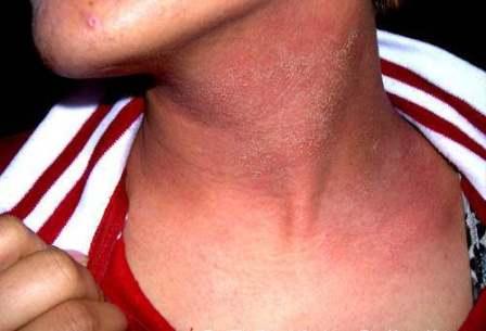 Средства бытовой химии и личной гигиены могут вызывать аллергические реакции