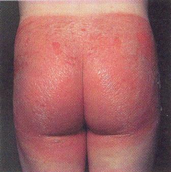 Обязательным условием эффективного лечения является исключение контакта с аллергеном