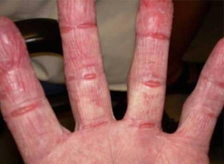 Порошок горчицы используют в народных рецептах для лечения кожи рук