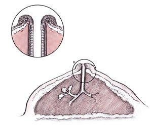 Меланома на соске: диагностика и методы лечения фото