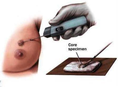 Биопсия – исследование образца ткани опухоли под микроскопом