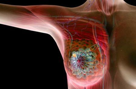 Точный механизм развития рака пока не изучен, теории часто противоречивы