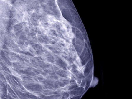 Маммография позволяет идентифицировать новообразования молочной железы