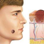 Меланома может развиваться на любых участках кожи, в том числе и на голове